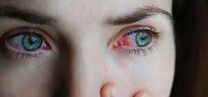 Saúde alerta para aumento dos casos de conjuntivite em Blumenau